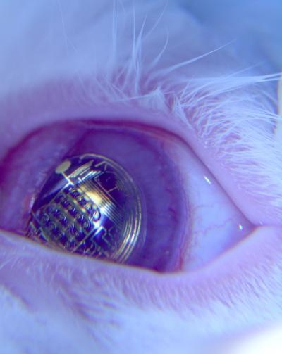 Contact Lenses Could Project Mobile Phone Displays Directly into the Eye